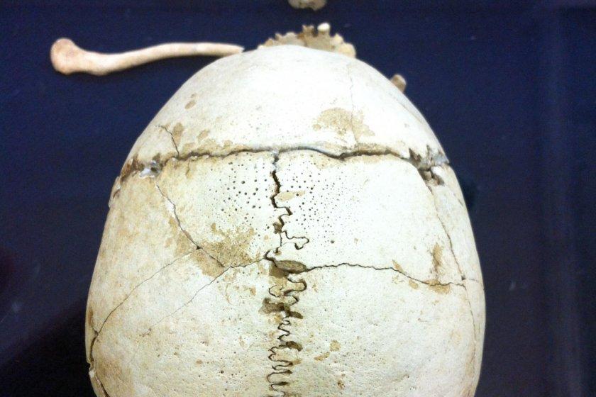 Skeleton of an adult female